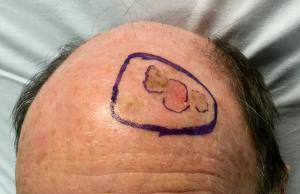 A diffuse area of pre-invasive melanoma and planned excision.