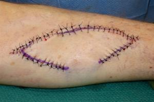 Sutured wound at the end of the surgery.