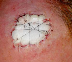 Skin graft has been secured beneath a foam pack to immobilise it against the excision defect.