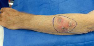 Excision of an extensive but fortunately superficial melanoma on the forearm is planned.