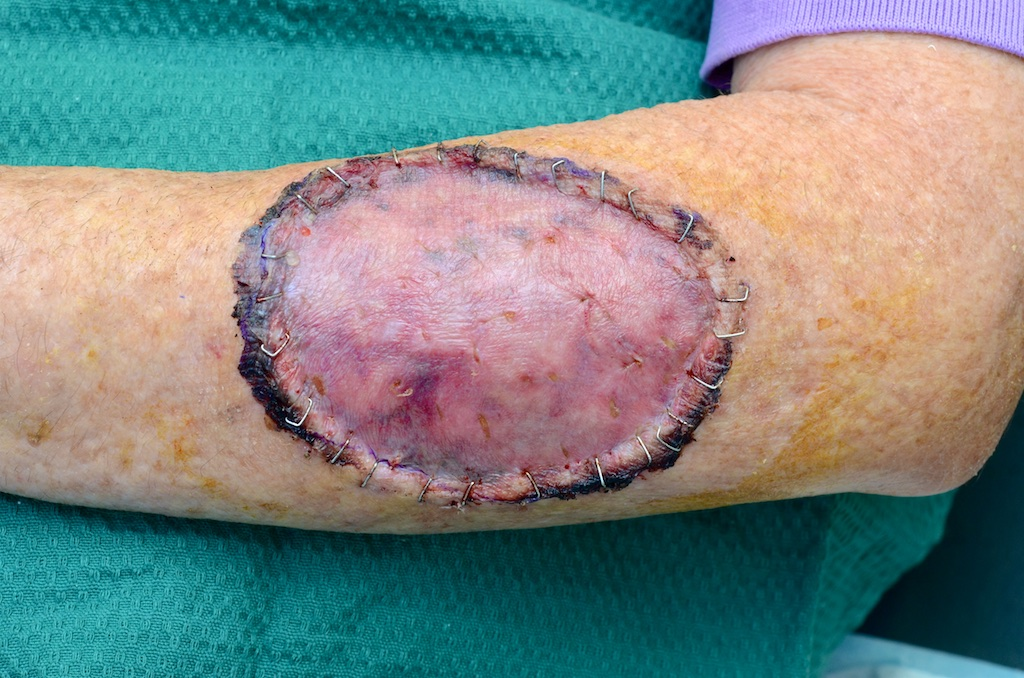 Post Op Wound Healing & Care - Dr Stretch
