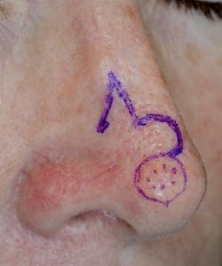 The visibly apparent skin cancer (BCC) is outlined with dotted marks and the actual excision and planned flap drawn.