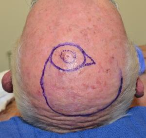 The pre-invasive melanoma is delineated by the dotted outline. The planned excision and flap repair is drawn.
